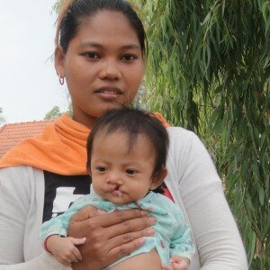 Uy Kosal now understands how to feed her daughter better and has plans for corrective cleft lip surgery.